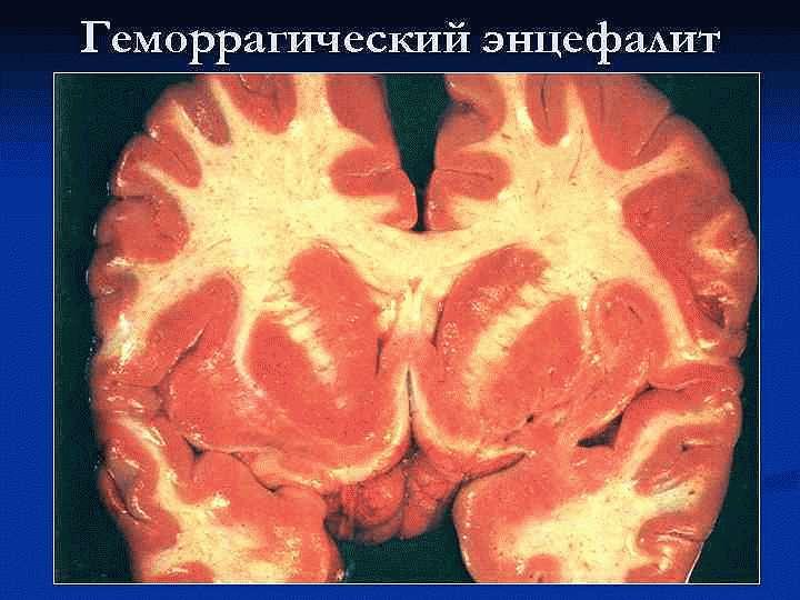 Геморрагическийлейкоэнцефалит