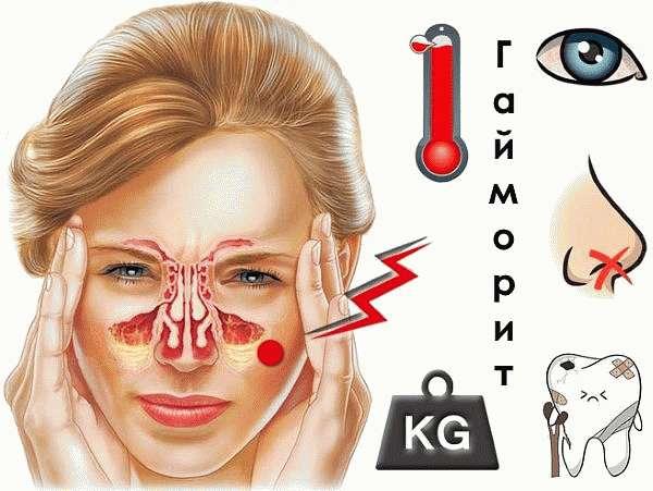 Гайморит симптомы