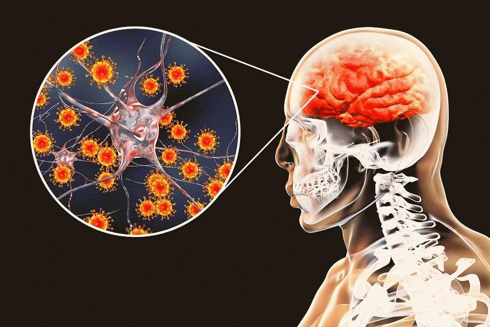 Менингоэнцефалит — первые проявления у ребенка и взрослого, пути передачи, методы терапии и осложнения