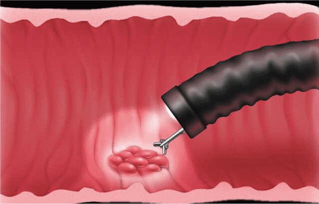 Биопсияпрямойкишки