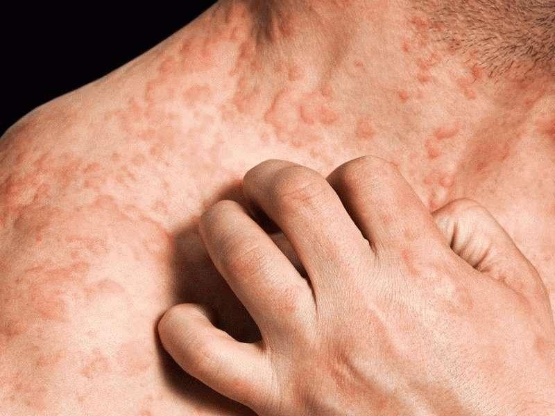 Тяжелая форма дерматита