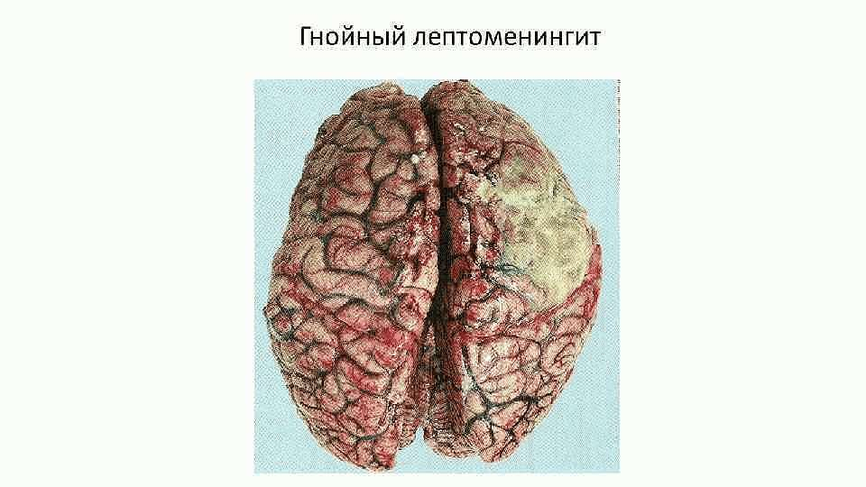 Лептоменингит