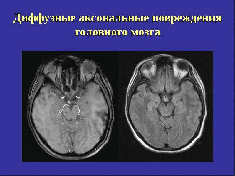 Диффузное аксональное повреждение мозга