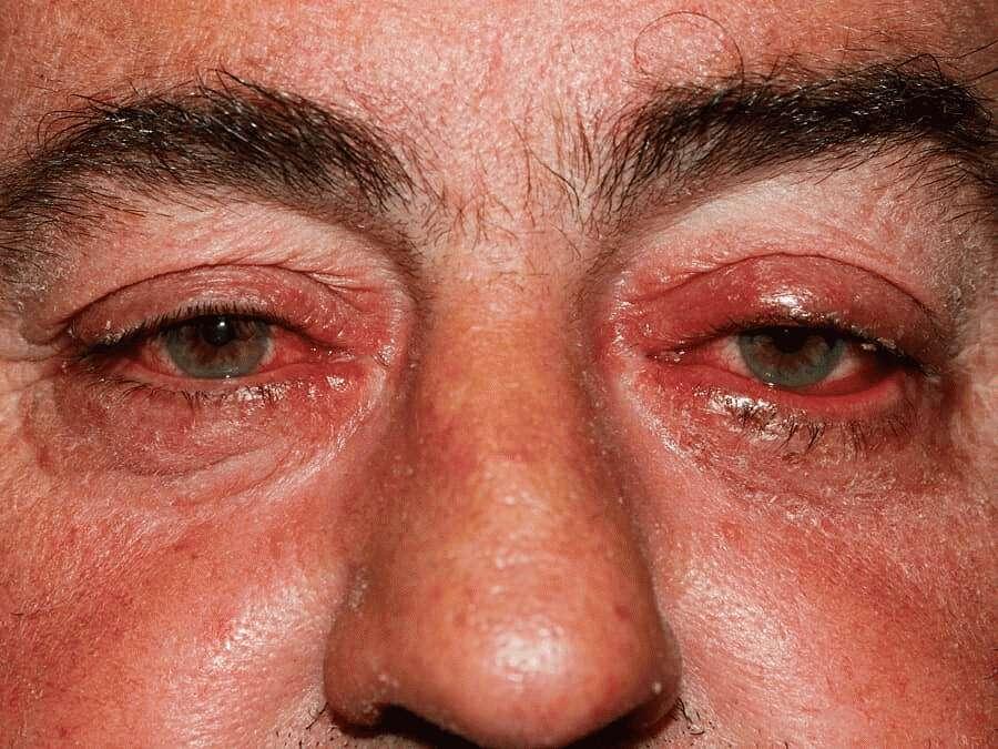 Офтальморозацеа
