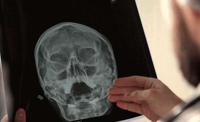 Рентгенография гайморовых пазух
