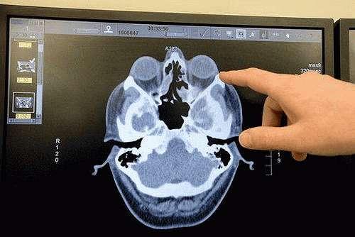 МРТ лобных пазух