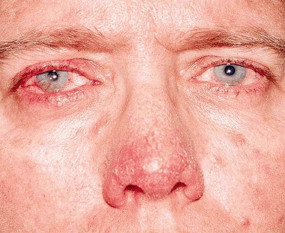 Офтальмологическая розацеа