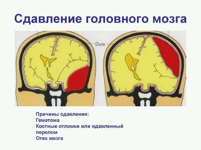 Сдавливание мозга
