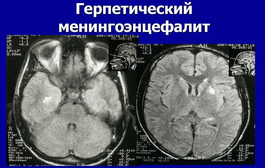 Герпетическийменингоэнцефалит