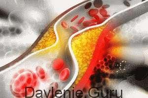Снижение уровня холестерин