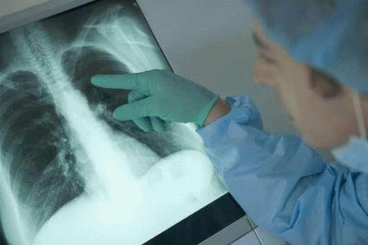 Пиогеннаяпневмония