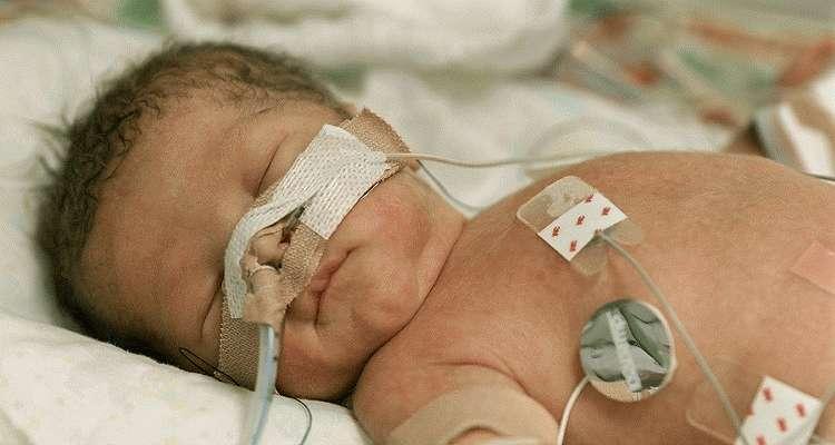 Менингоэнцефалит у новорожденных
