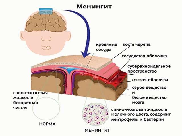 Вирусныйтипменингита
