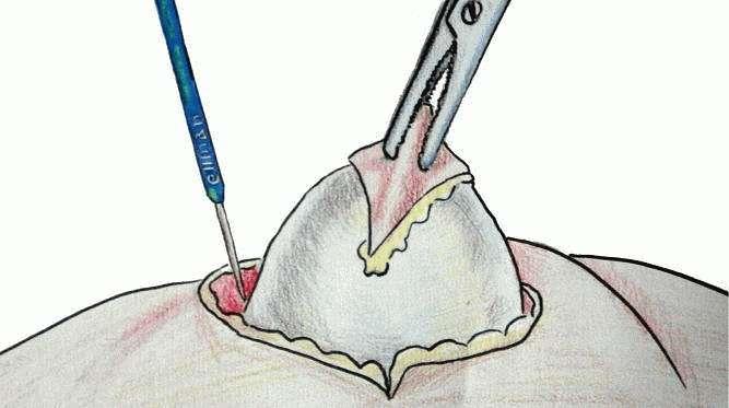 Хирургическое лечение Фурункулеза