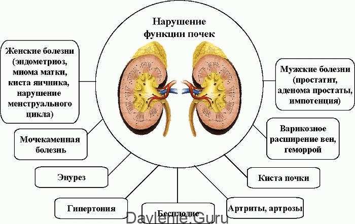 Что такое атерокальциноз: виды заболевания