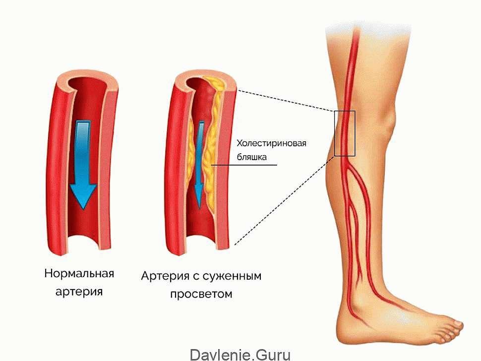 Заболеванием периферических артерий
