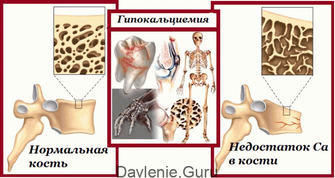 Недостаток кальция в организме