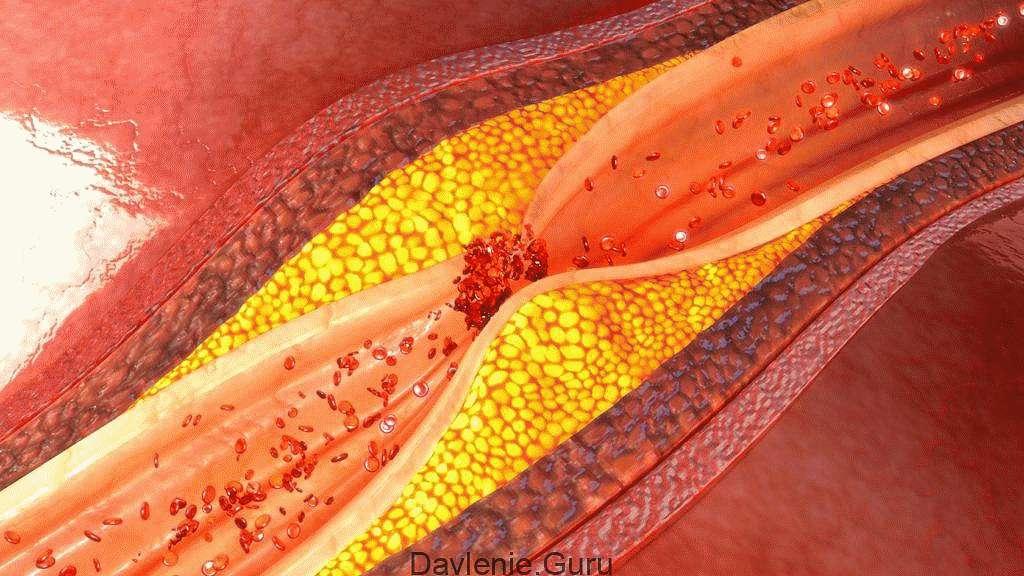 Сосуды поражены атеросклерозом с обеих сторон