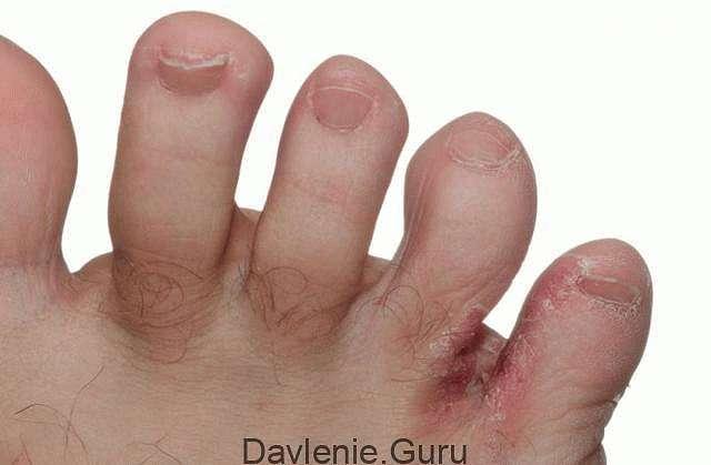 Эрозии между пальцев ног