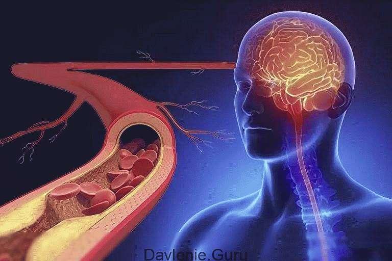 Кровоснабжение головного мозга и артерии головного мозга