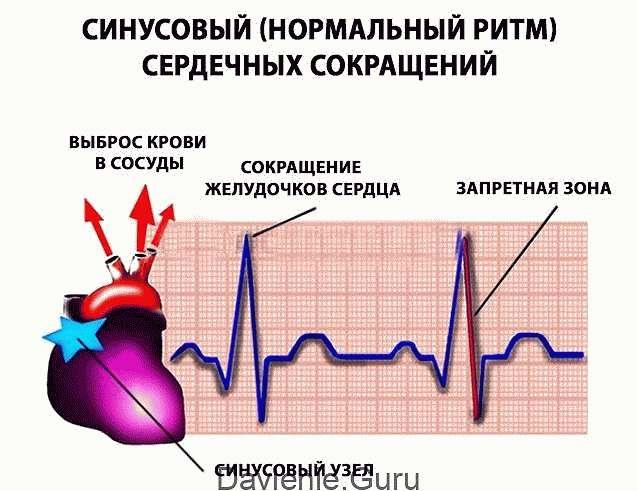 Нормальный синусовый ритм сердца
