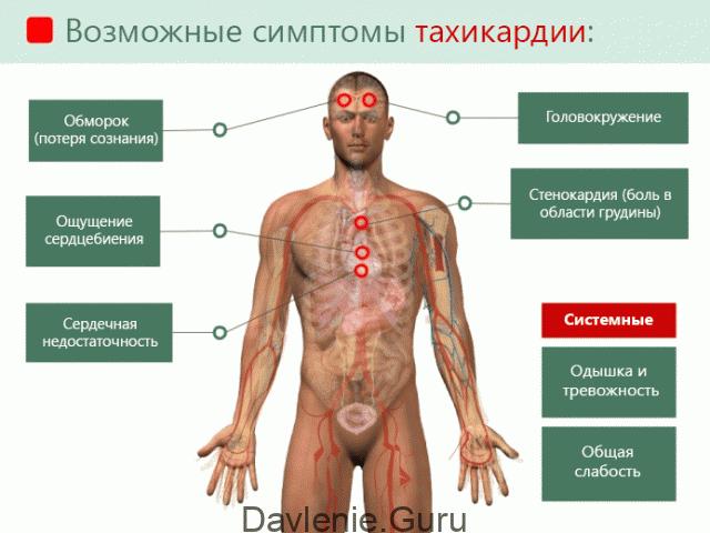 Признаки тахикардии