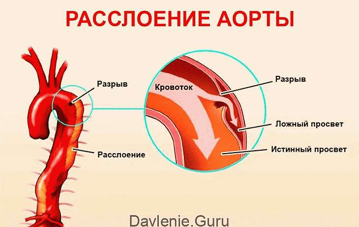 Последняя стадия атеросклероза симптомы thumbnail