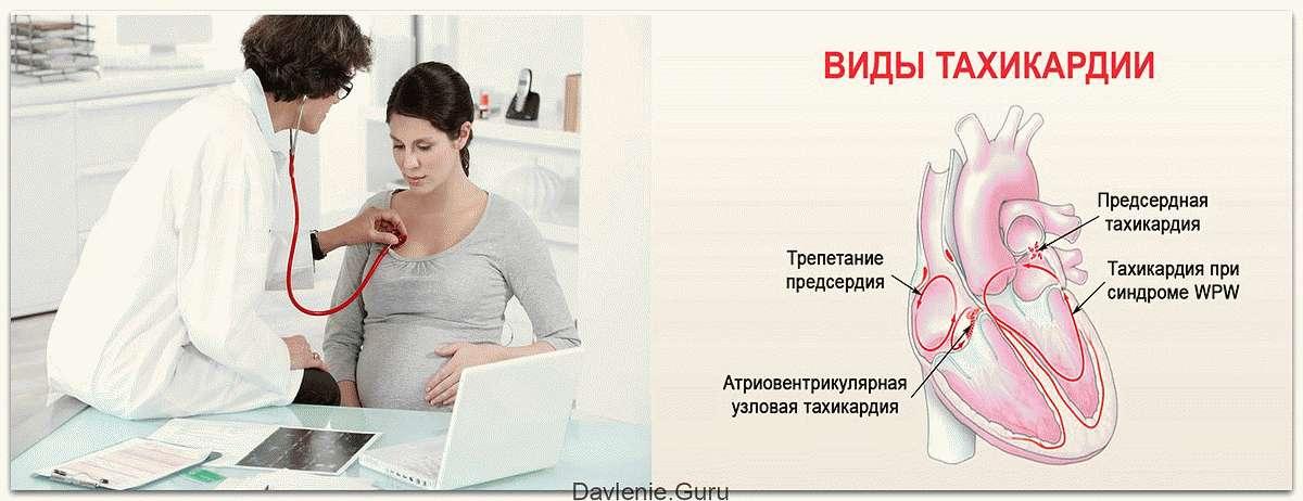 Тахикардия у беременных