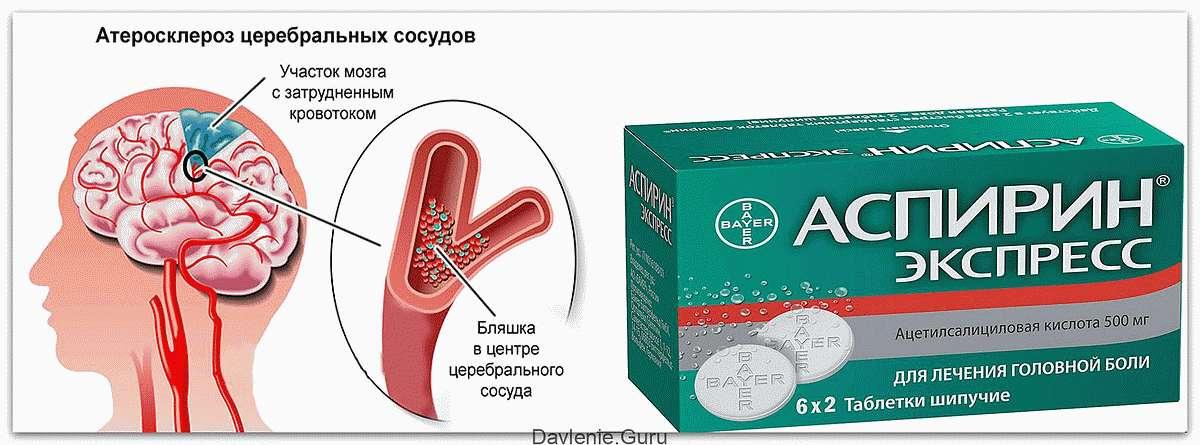 Аспирин при церебральном атеросклерозе