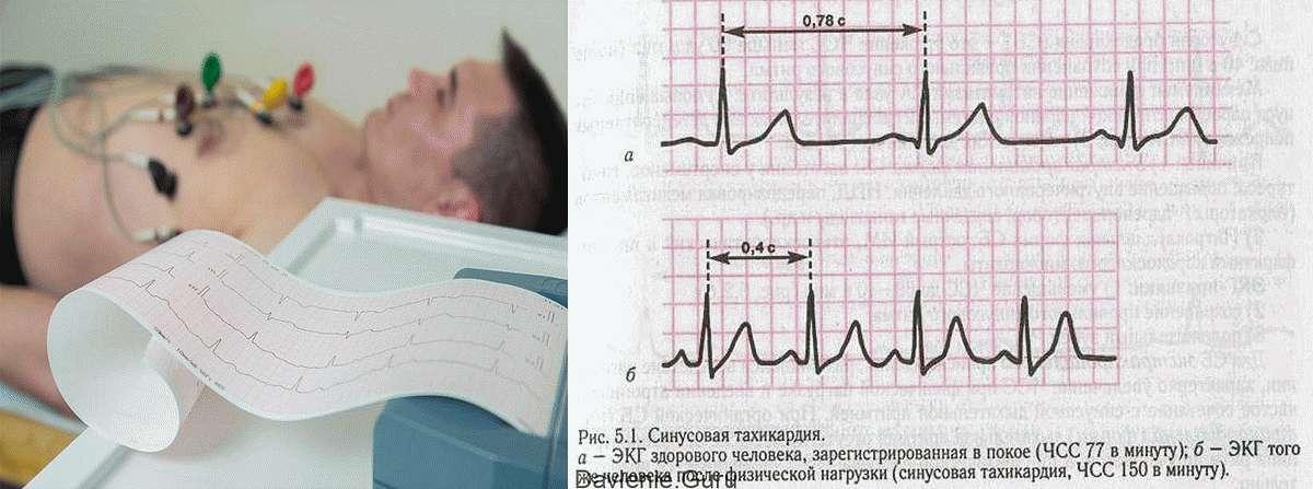 ЭКГ Синусовой тахикардии