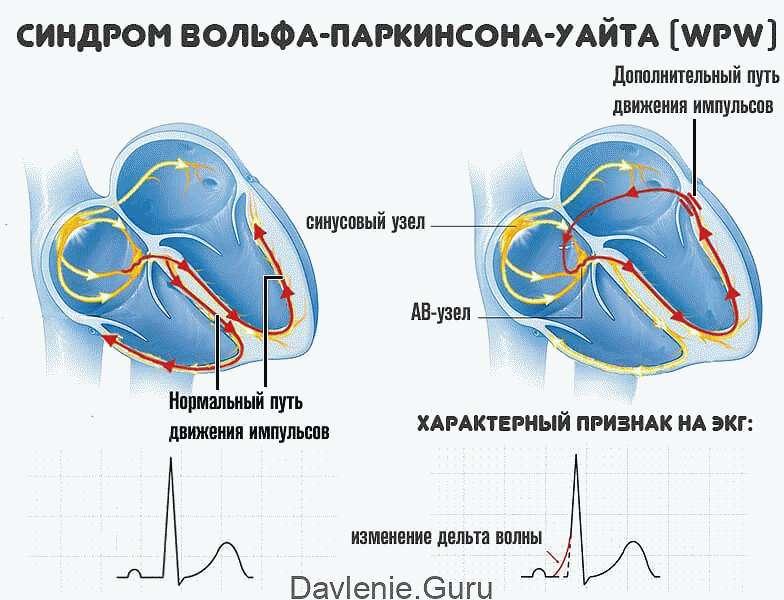 Синдром Вольфа-Паркинсона-Уайта