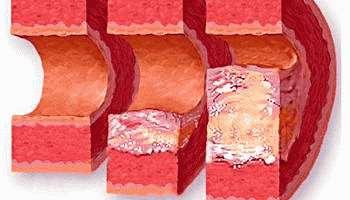 Все стадии и этапы развития атеросклероза сосудов