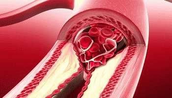 Что такое генерализованный атеросклероз: описание и симптомы