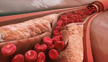 Осложнения атеросклероза сосудов: к чему может привести заболевание?