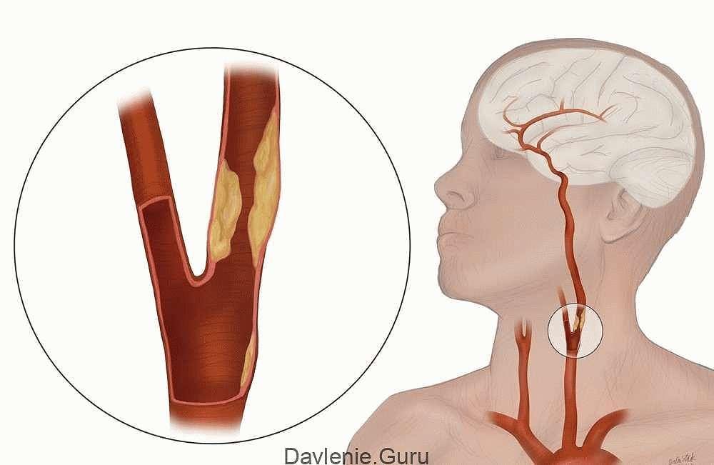 Поражение брахиоцефальных артерий