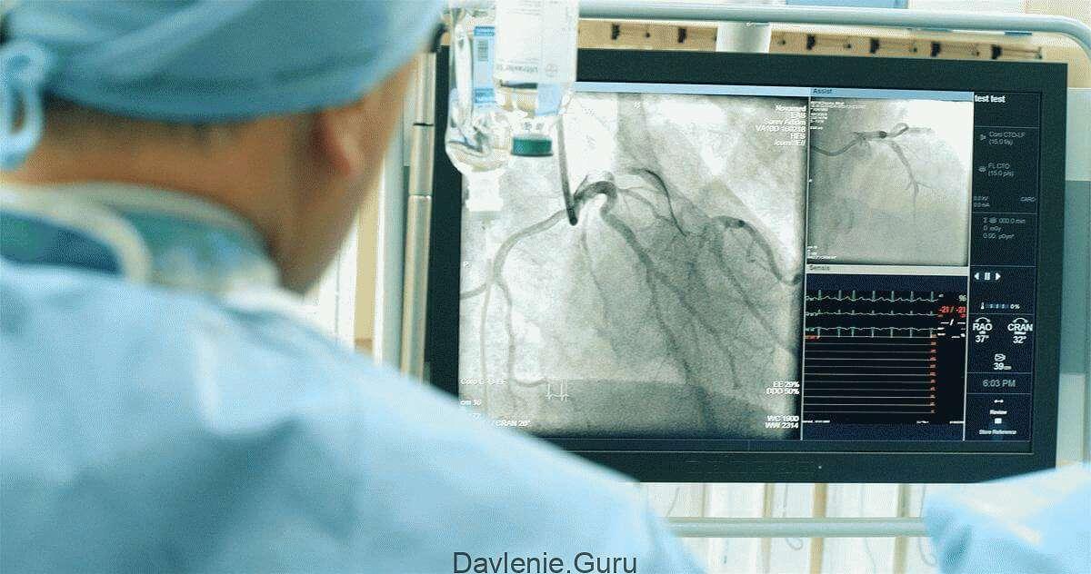 Обследование сосудов сердца