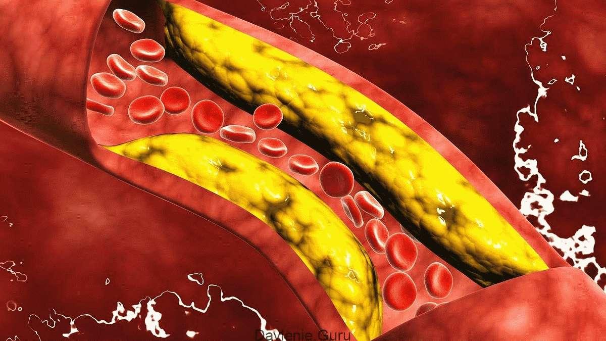 Холестериновые бляшки в сосудах