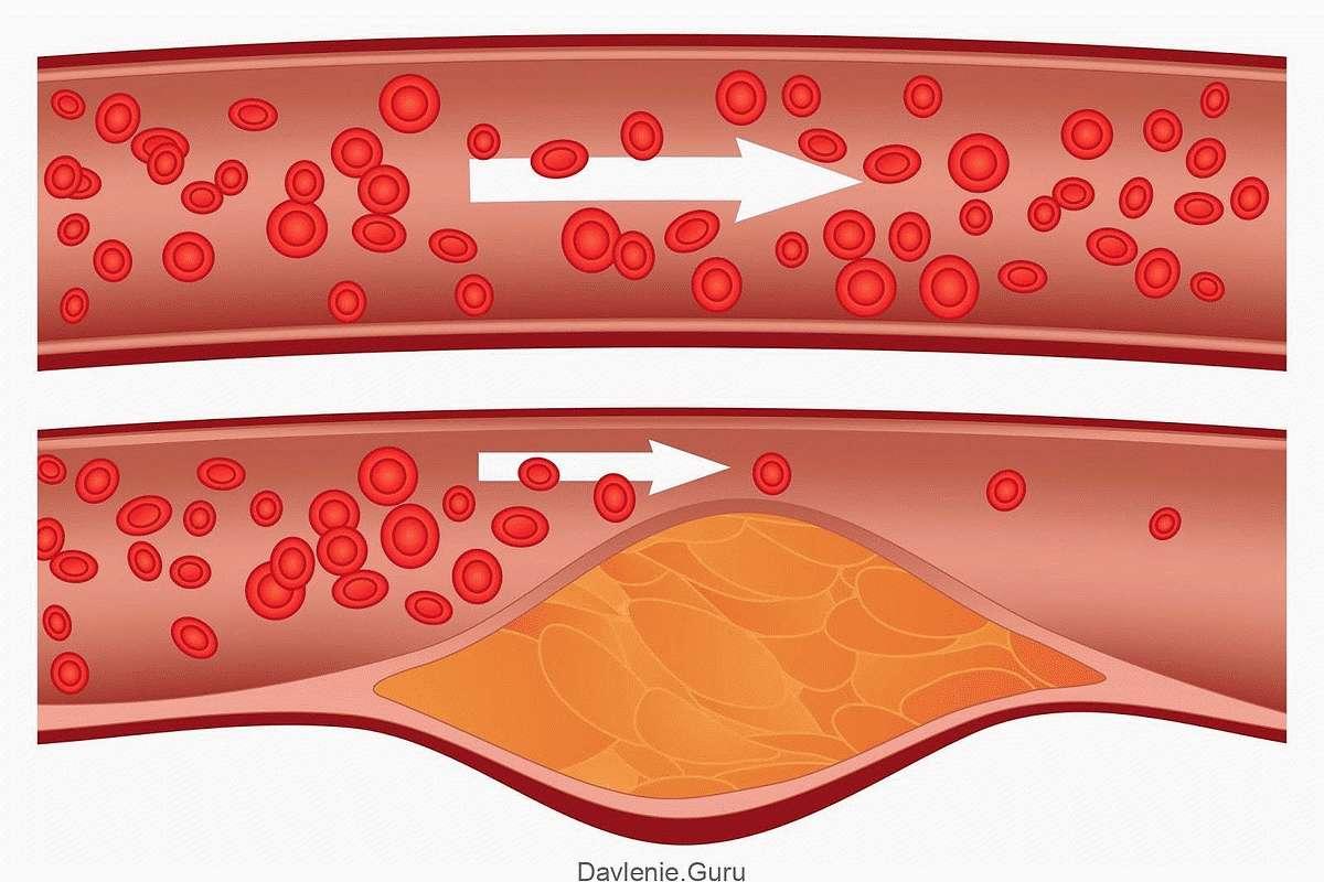 Очищение кровеносного русла от холестериновых бляшек