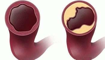 Что такое нестенозирующий атеросклероз сосудов и артерий?