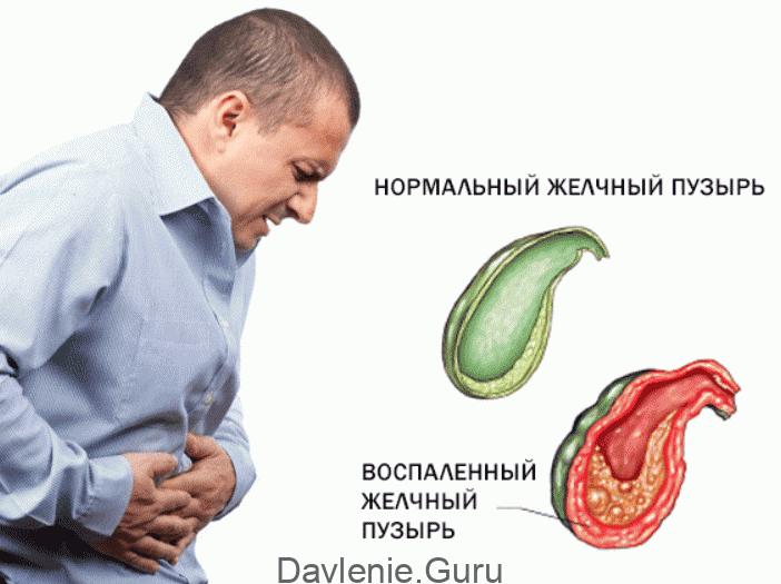 Воспалительные процессы в желчном пузыре