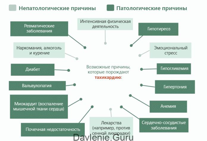 Физиологическая тахикардия