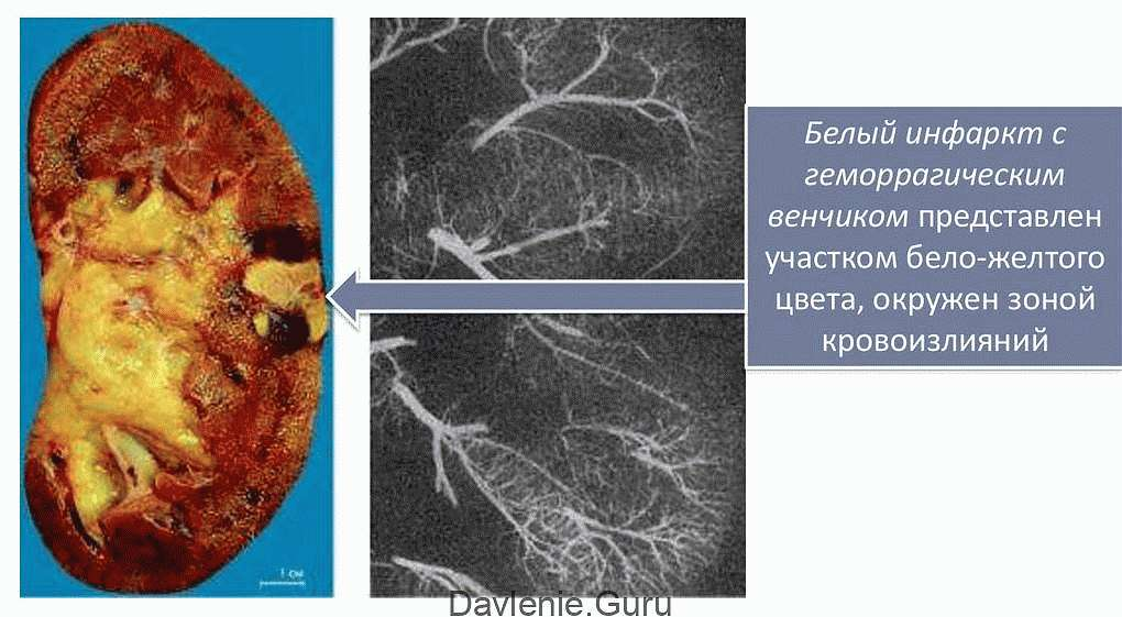 Развитие почечного инфаркта