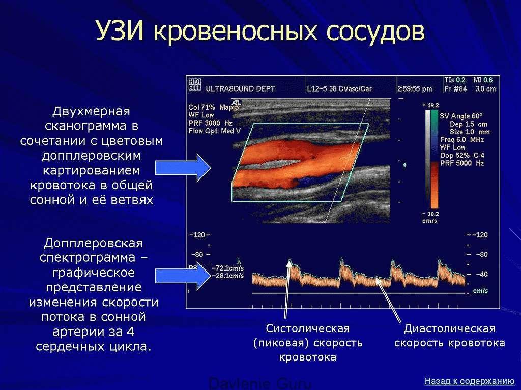 УЗИ кровеносных сосудов