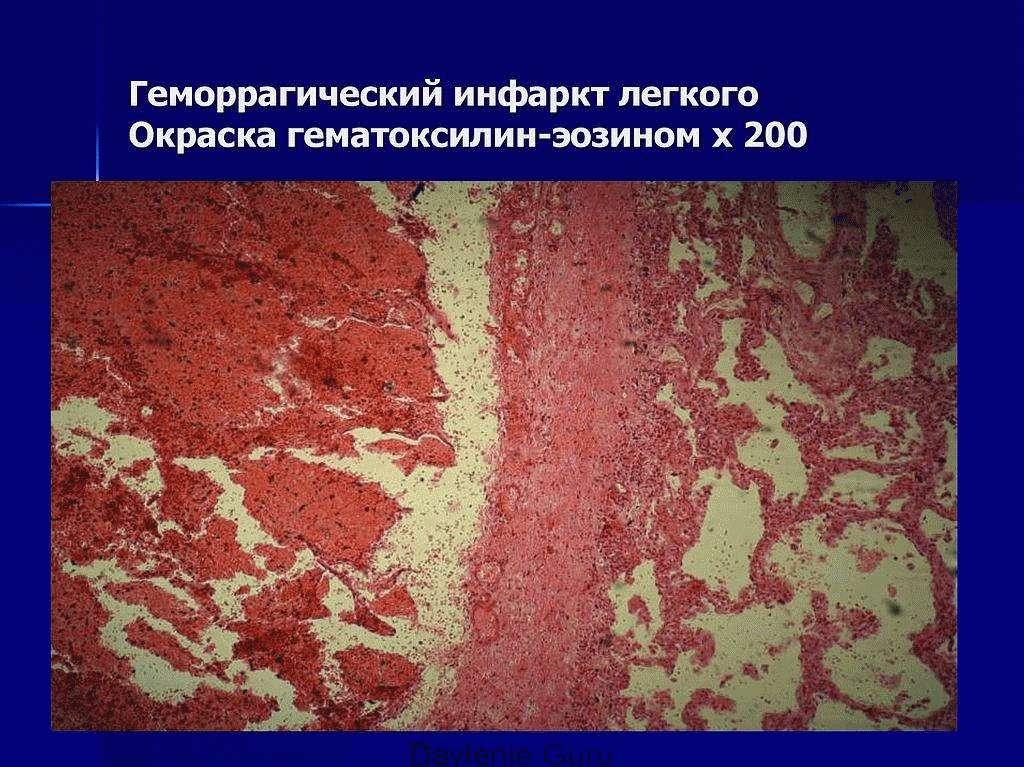 Геморрагический инфаркт лёгкого