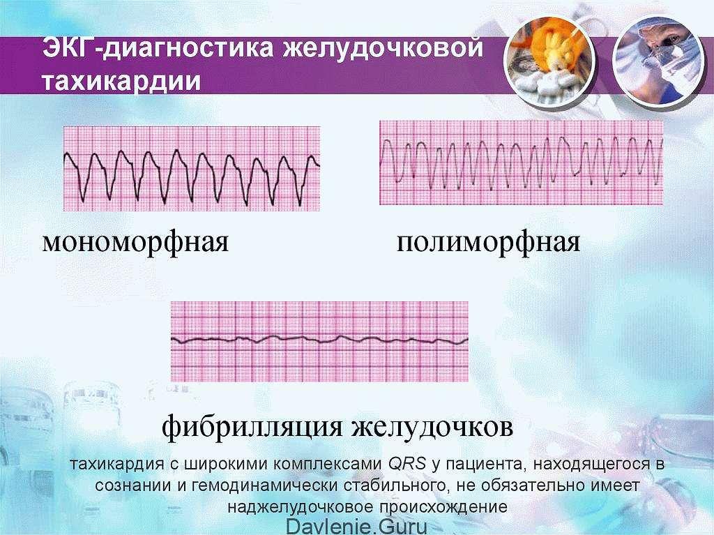 ЭКГ-признаки желудочковой тахикардии