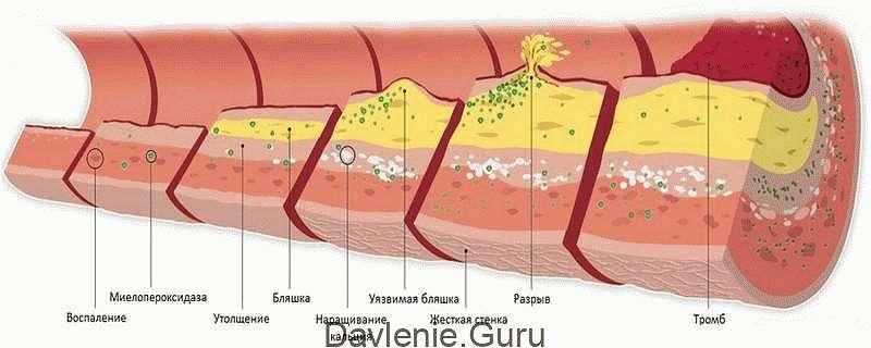 Тромбы и холестериновые бляшки