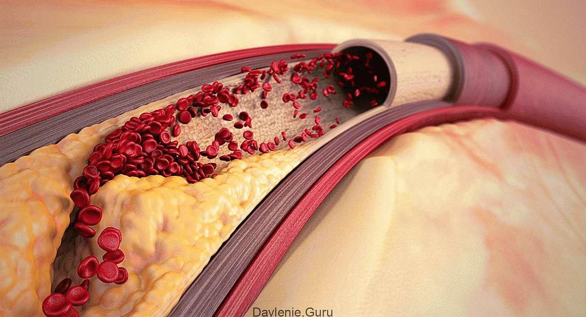Атеросклеротический налет