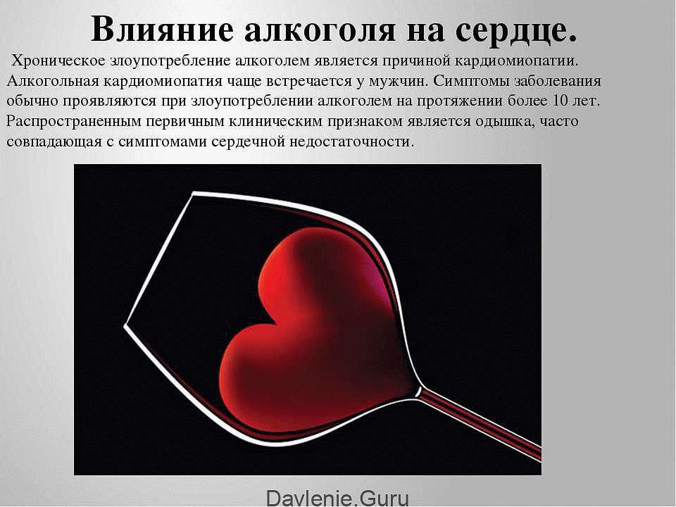 картинки на тему влияние алкоголя на сердце видела, честно