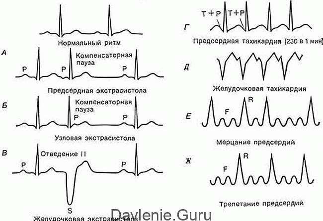 Типы тахикардии на ЭКГ