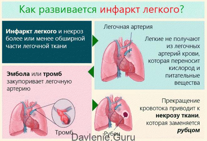 Инфаркт лёгкого
